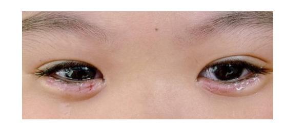 瑞瑞今年5岁,正是天真烂漫的时候,她却经常以泪洗面,常常喊着眼睛